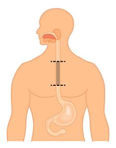 Oesophagectomie
